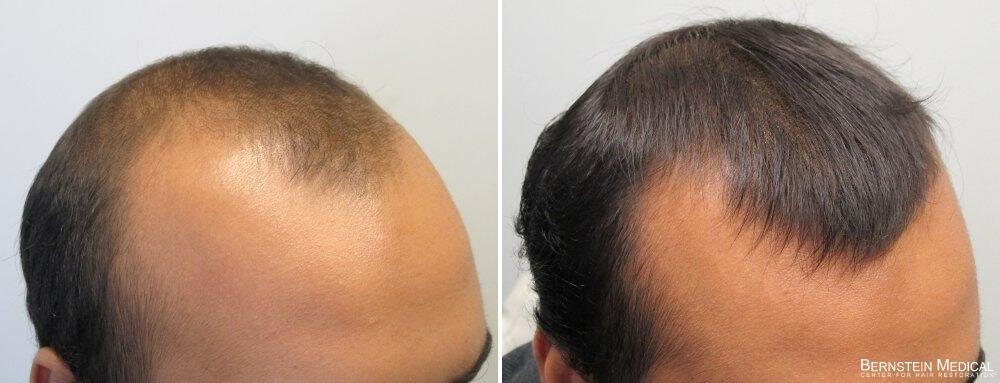 Avant et après avoir pris Propecia