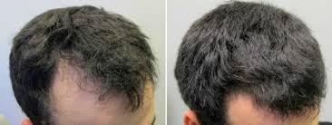 Avant et après avoir pris Propecia - 2