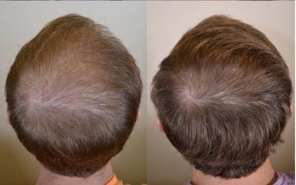 Avant et après avoir pris Propecia- 3