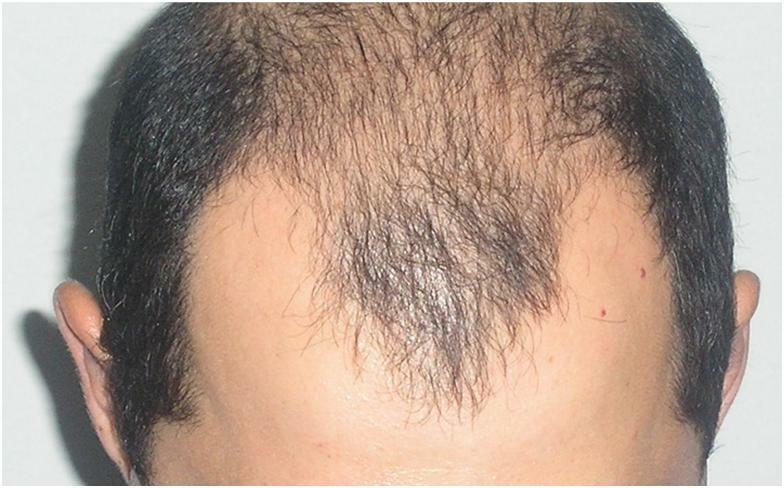 Alopécie fibreuse frontale chez l'homme