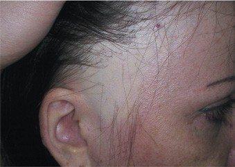 Alopécie fibreuse frontale