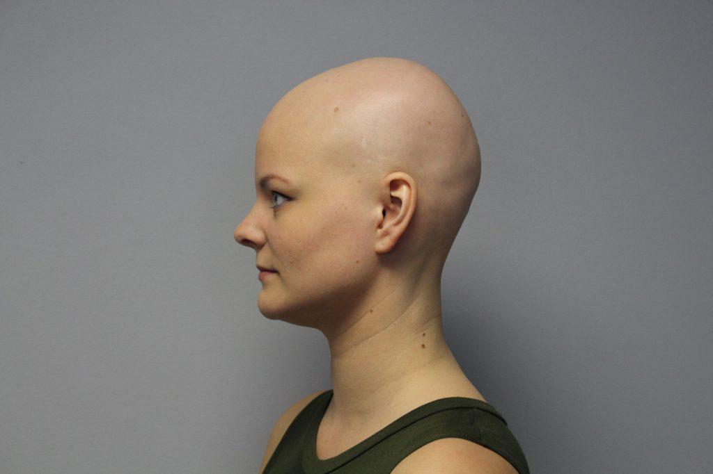Alopécie universelle (totale)