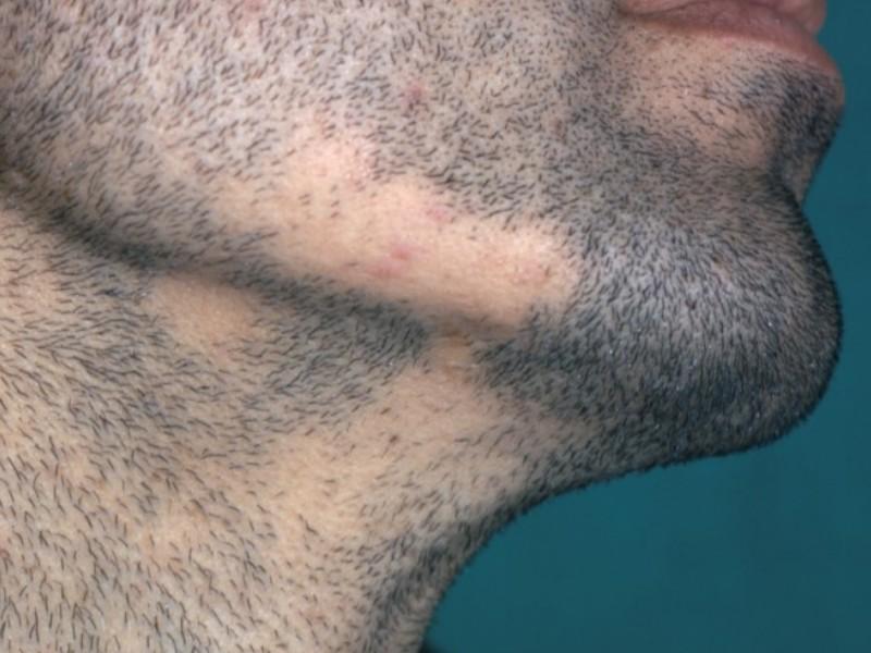 alopécie focale sur la barbe
