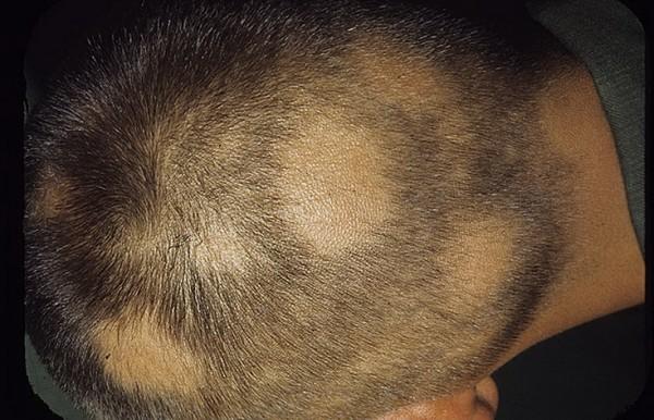 Alopécie areata – la chute de cheveux circulaire