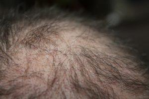 Perte de cheveux diffuse